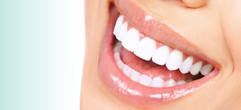 white-teeth.png